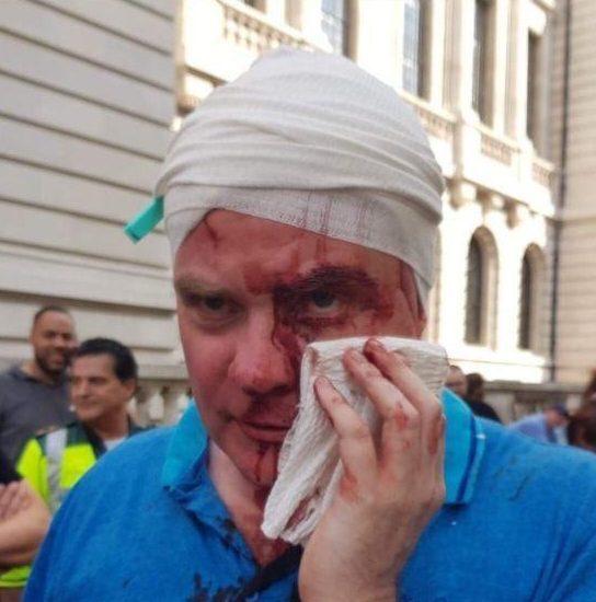 Стив Хедли после нападения неофашистов